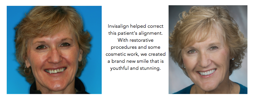 Salinas-dental-health-Invisalign