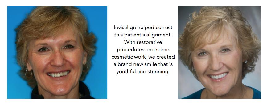 Salinas-dental-health-Invisalign