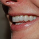 Invisalign_On_teeth
