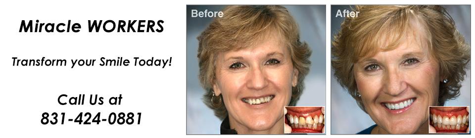 Salinas-Dental-Health-cosmetic-dentistry-Andresen